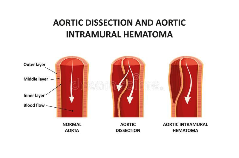 Aortic dissection and aortic intramural hematoma stock photos