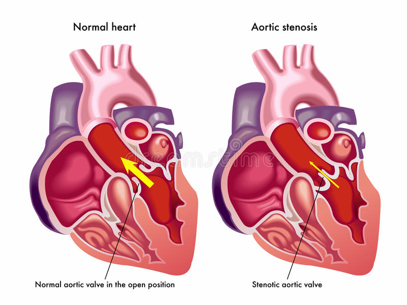 Aortic stenosis royalty free illustration