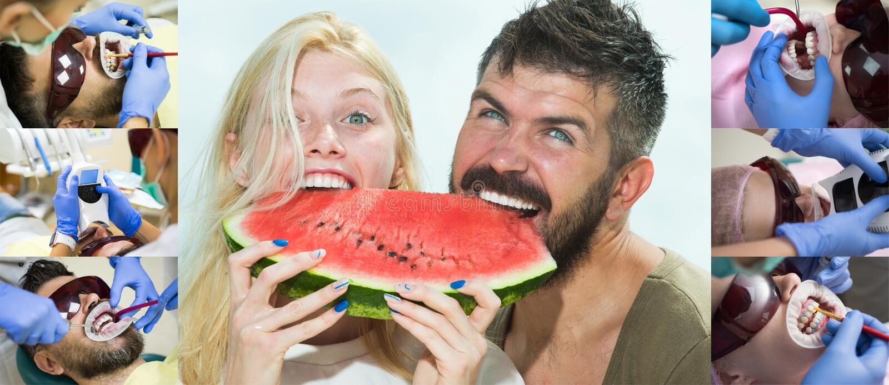 Aperfeiçoe o sorriso antes e depois dos pares felizes do descoramento Grupo de dentes do alvejante com ultravioleta Pares novos n imagem de stock