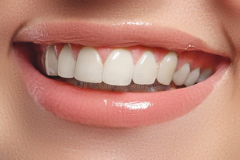 Aperfeiçoe o sorriso Bordos completos naturais bonitos e dentes brancos Dentes que whitening imagem de stock