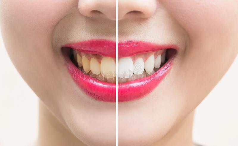 Aperfeiçoe os dentes do sorriso antes e depois do descoramento Whitening os dentes fotos de stock royalty free