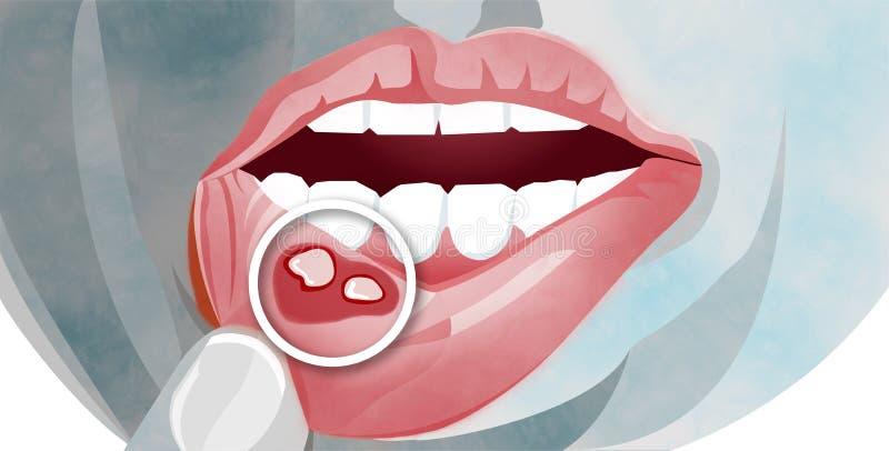 Aphthous stomatitis jest pospolitym warunkiem charakteryzującym częstotliwą formacją korzystni i zaraźliwi usta wrzody ilustracji