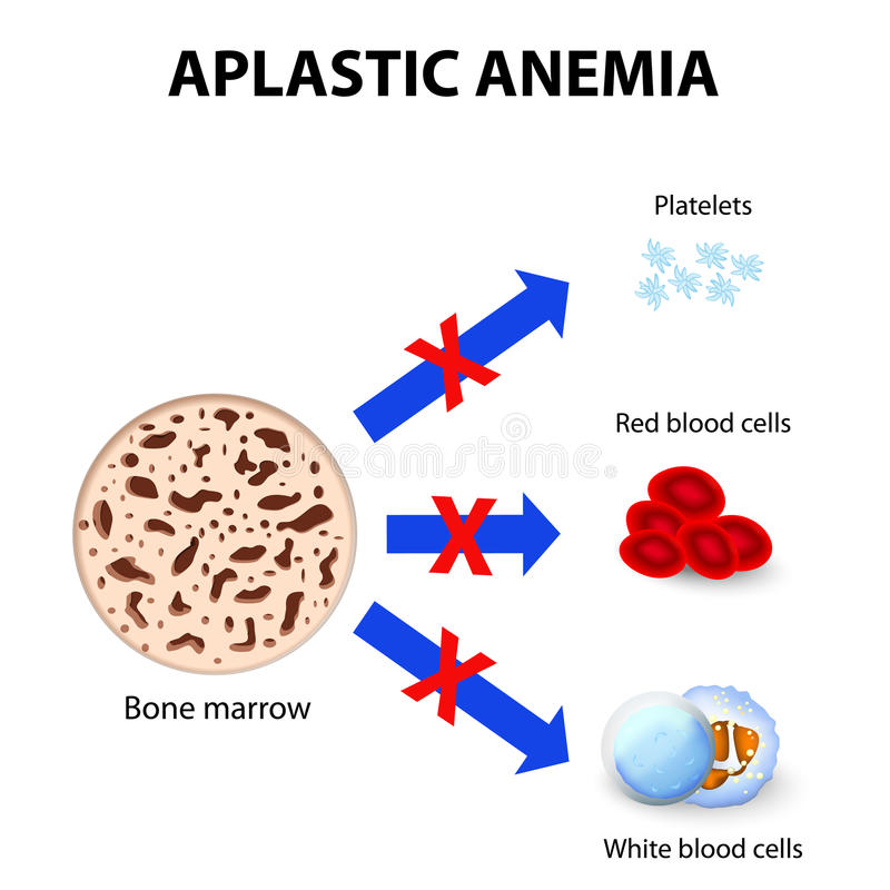 Download Aplastic anemia stock vector. Image of differentiation - 47875307