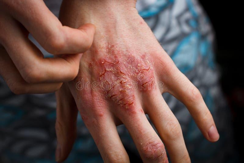 Aplicando um emoliente à pele flocoso seca como no tratamento da psoríase, da eczema e das outras condições de pele seca imagens de stock