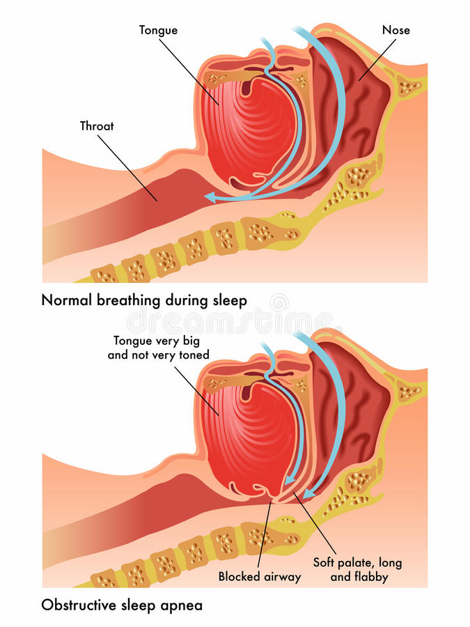Apnée du sommeil obstructive illustration libre de droits