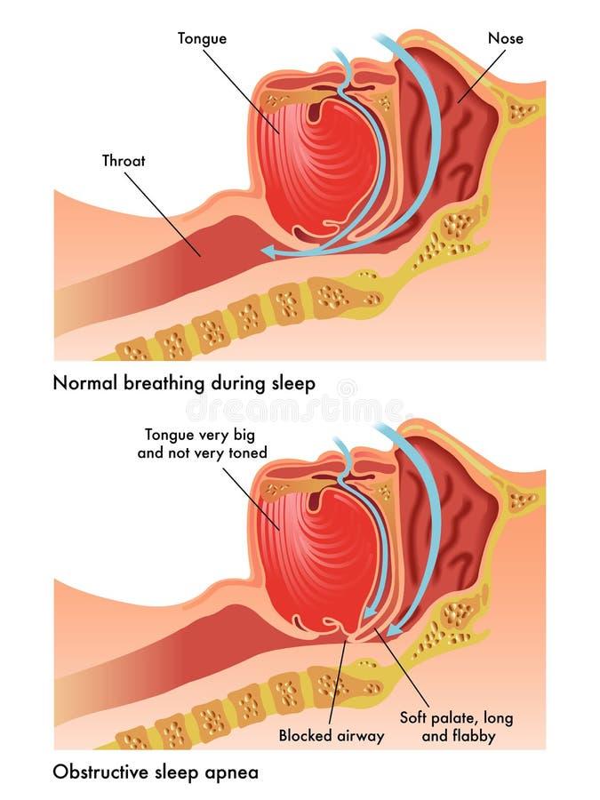 Apneia do sono obstrutiva ilustração royalty free
