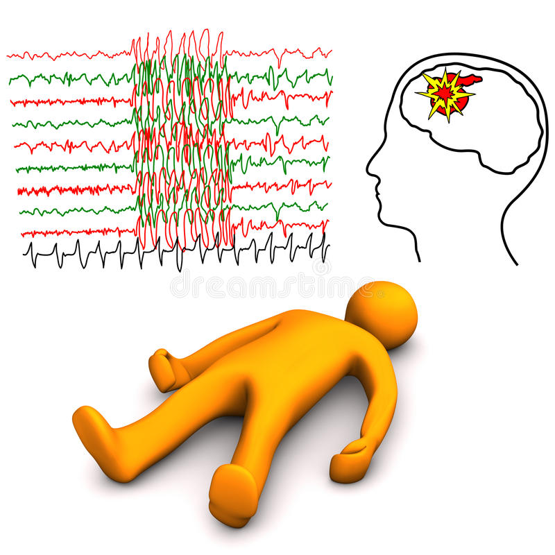 Apoplectische en Epileptische Slag vector illustratie