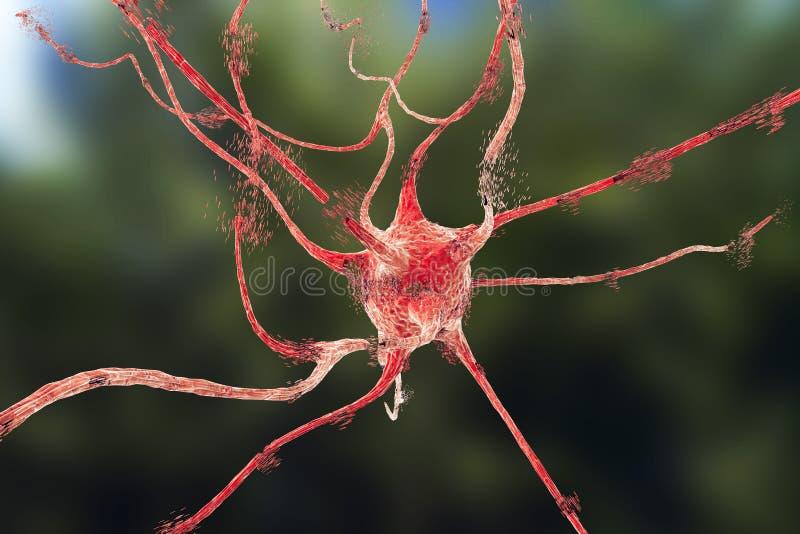 Apoptosis av neuronen som observeras i olika sjukdomar vektor illustrationer