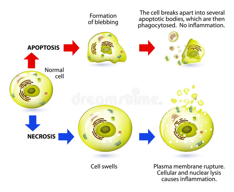Download Apoptosis And Necrosis. Difference. Stock Vector - Illustration of immune, diagram: 47670498