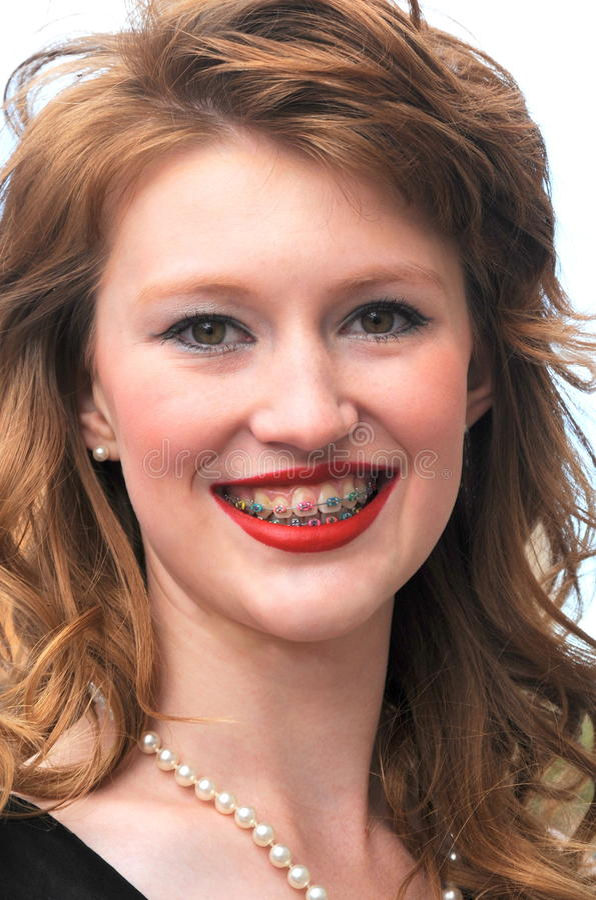 Apoyos coloridos de los dientes imagen de archivo