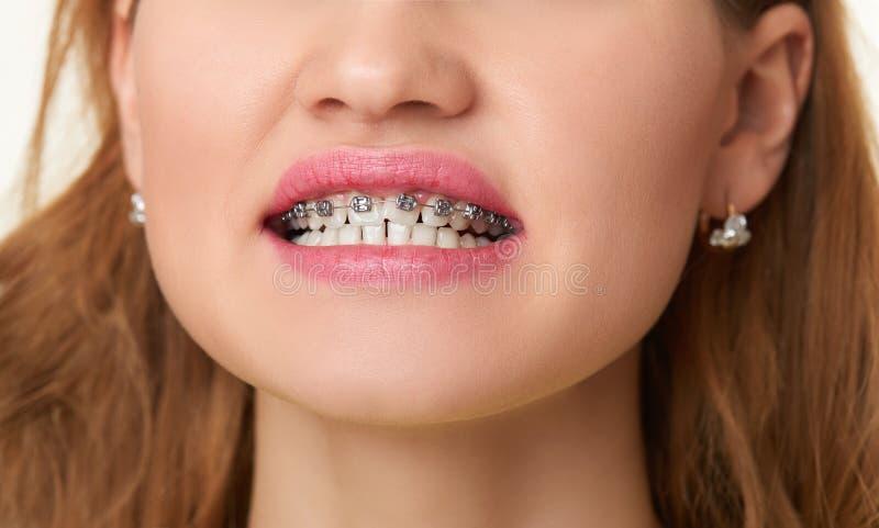 Apoyos en los dientes, cierre hermoso de la sonrisa de la cara de la mujer para arriba imagen de archivo libre de regalías