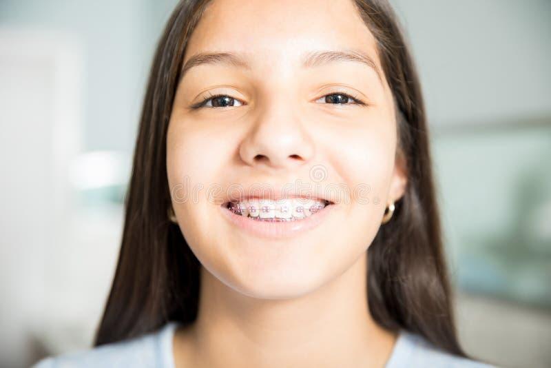 Apoyos que llevan sonrientes del adolescente en la clínica dental fotos de archivo libres de regalías