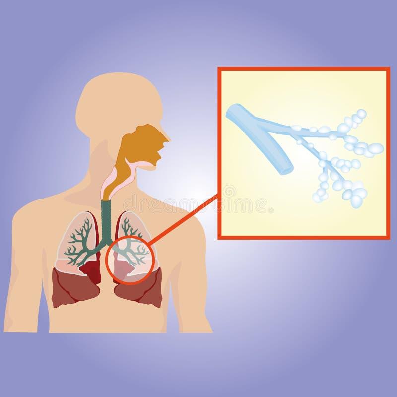 Apparato respiratorio Bronchi aumentati illustrazione vettoriale