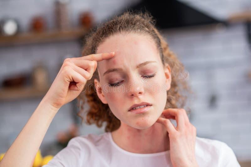 Appellieren des Ingwermädchens mit den geschlossenen Augen, die unter extremer Allergie leiden stockbilder