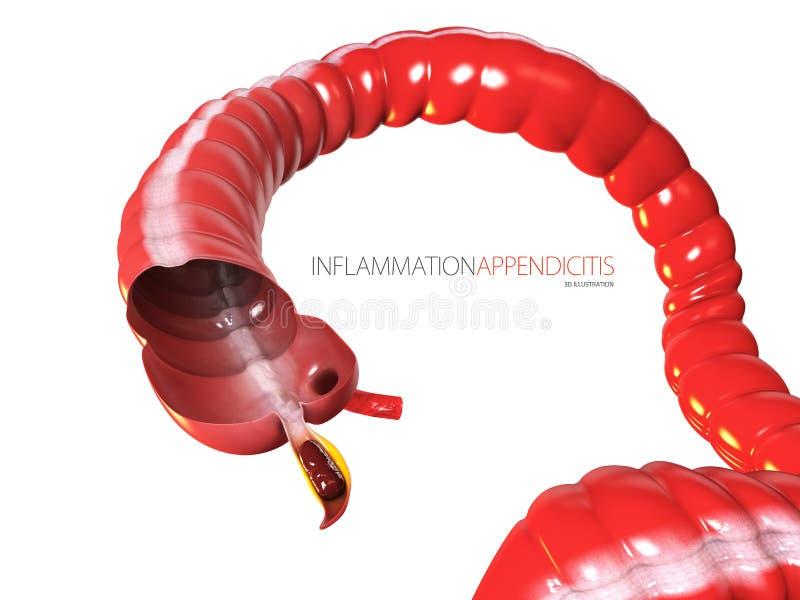 Appendicitis pojęcie, ludzka kiszkowa anatomia jako 3D ilustracja ilustracja wektor
