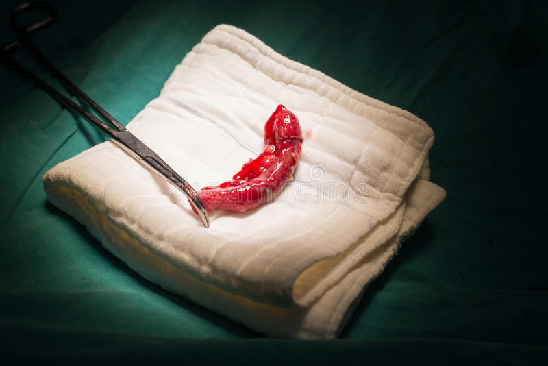 Appendix specimen from appendectomy. The Appendix specimen from appendectomy royalty free stock photography