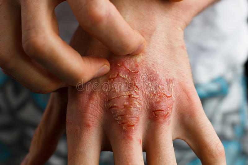 Applying an emollient to dry flaky skin as in the treatment of psoriasis, eczema and other dry skin conditions. Psoriasis, eczema and other dry skin conditions stock photo