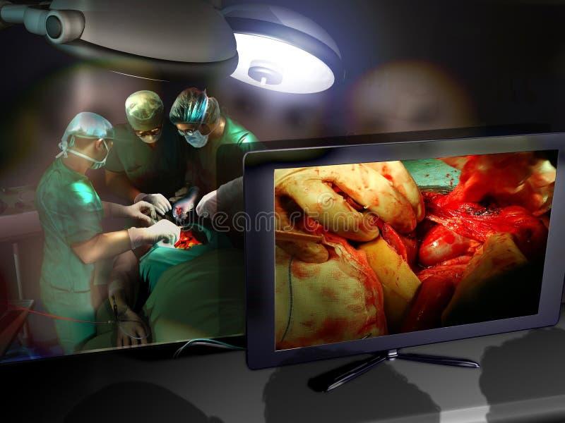 Apprendimento della chirurgia royalty illustrazione gratis