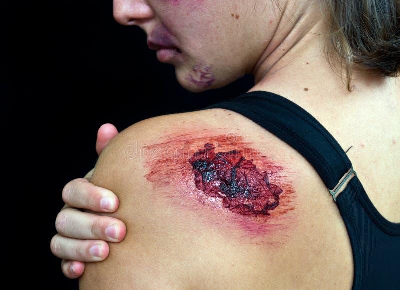 Apra la ferita sulla spalla della donna fotografia stock libera da diritti