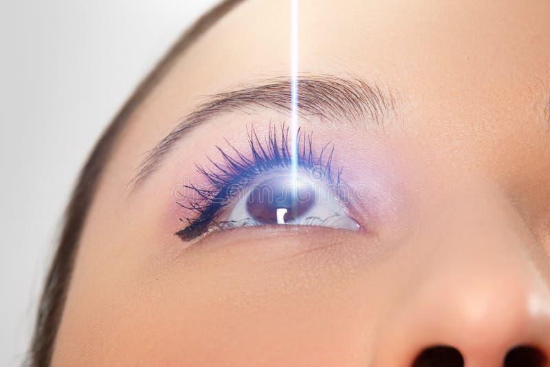 Aproximação oftalmológica da mulher Feixe laser na córnea Conceito de correção da visão laser imagem de stock royalty free