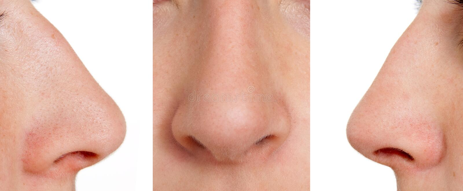 Aquiline nose stock images