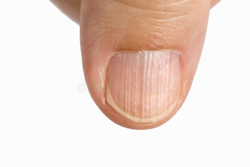Arêtes verticales sur les ongles image libre de droits