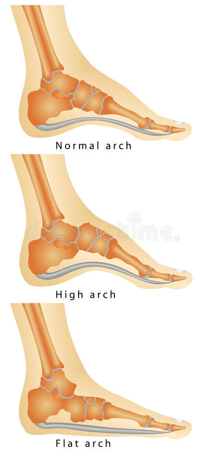 Arch of Foot. Set of flat foot, high arch. Rheumatoid Arthritis In . Various stages of the disease on white background