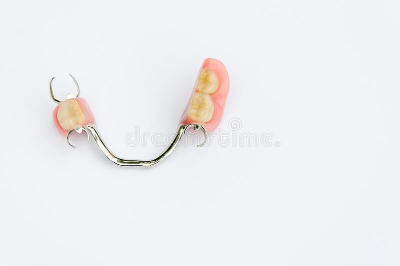 Arch prosthesis on the lower jaw without crowns royalty free stock photo