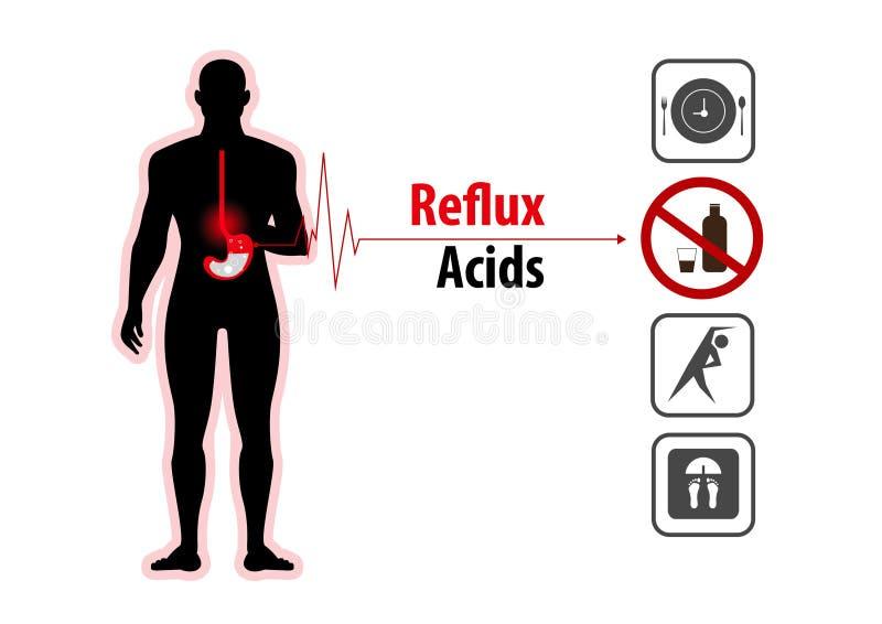Ardor de estómago ácido y Gerd del reflujo infographic libre illustration