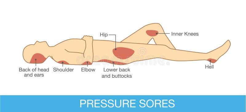 Area delle ferite di pressione illustrazione di stock