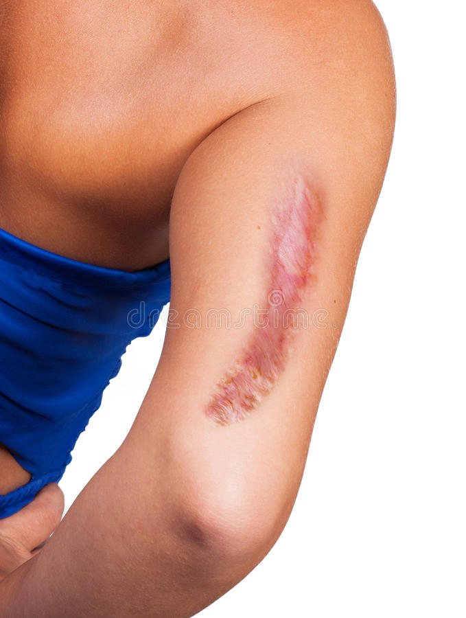 Arm with big scar. Female arm with big scar stock photography