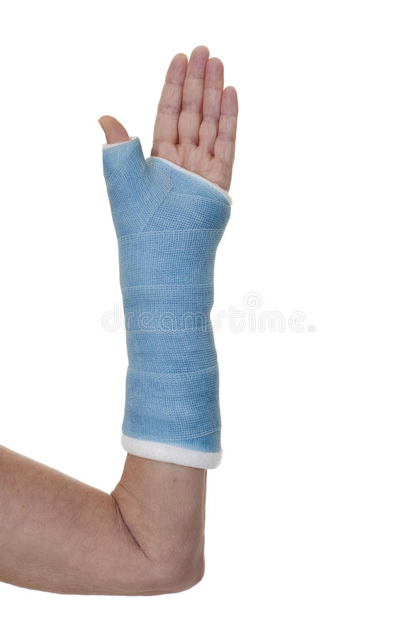 Arm in blue cast royalty free stock photography