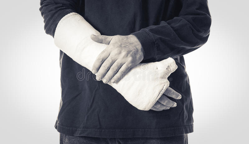 Arm plaster / fiberglass cast with the thumb extended. Black and white close up of a white arm plaster / fiberglass cast with the thumb extended in a thumbs-up stock photo
