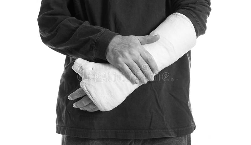 Arm plaster / fiberglass cast with the thumb extended royalty free stock images