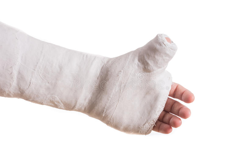 Arm plaster / fiberglass cast with the thumb extended stock image