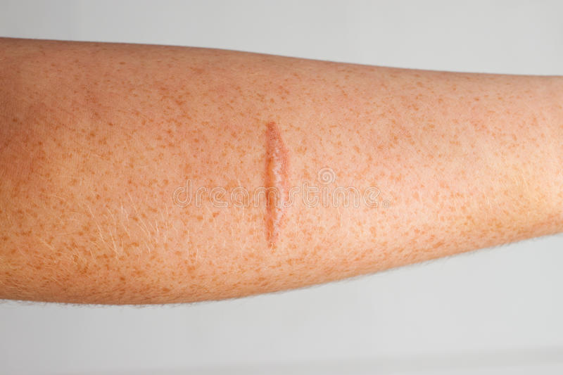 Arm Scar. Burn scar on the skin of a persons forearm royalty free stock photography