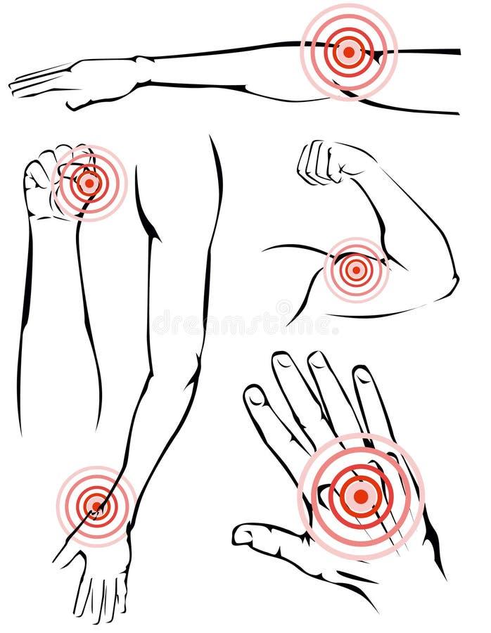 Armar smärtar vektor illustrationer