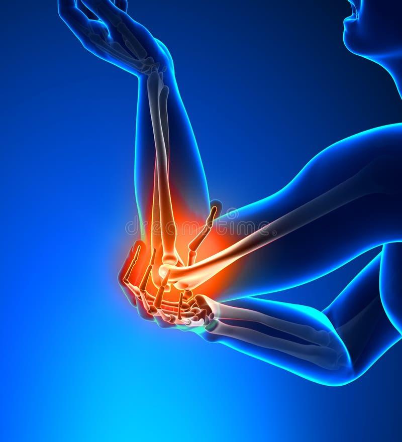 Armbåga smärtar manlign - sidan beskådar stock illustrationer