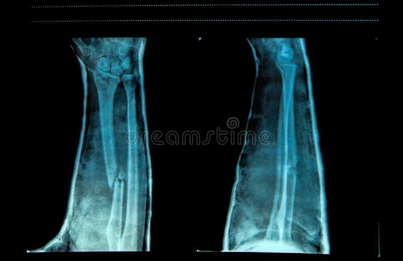 Armbrott som ses på röntgenstråle royaltyfria foton