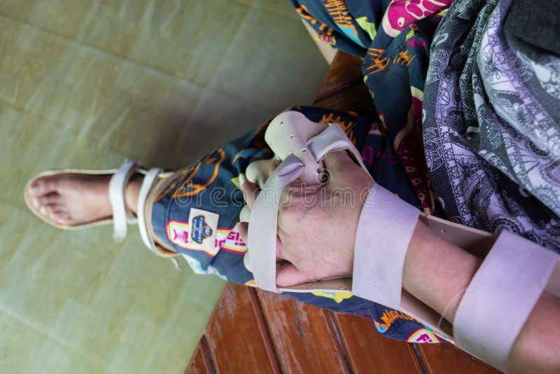 Armen spjälkar för behandling arkivfoto
