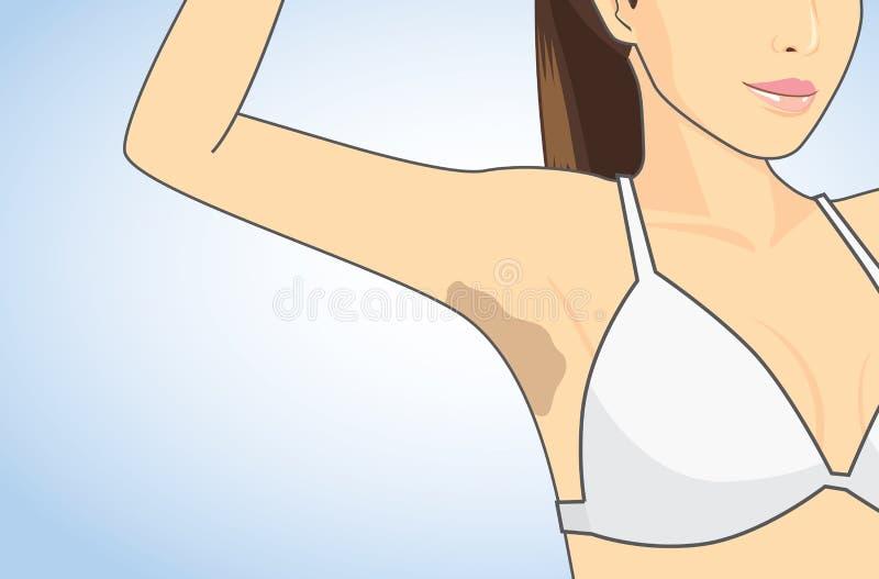 Armpit skin discoloration royalty free illustration