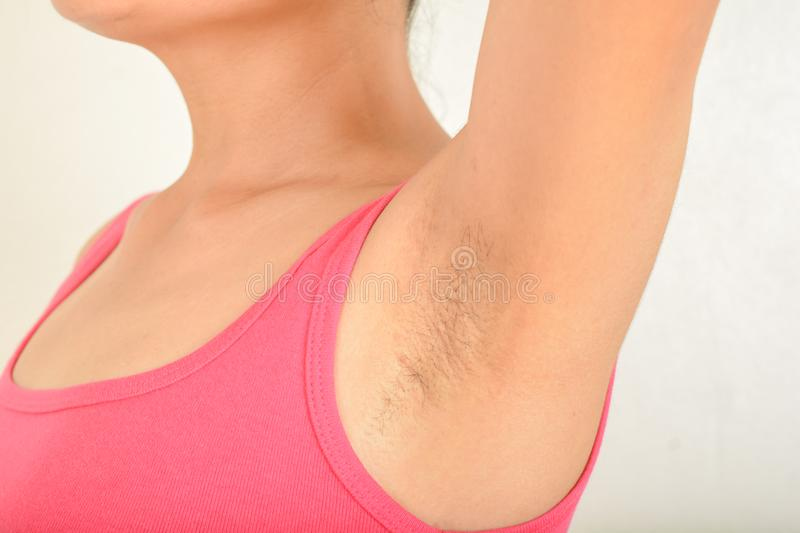 Hairy armpits and Black spots. Armpits and Hairy of women Black spots royalty free stock photos