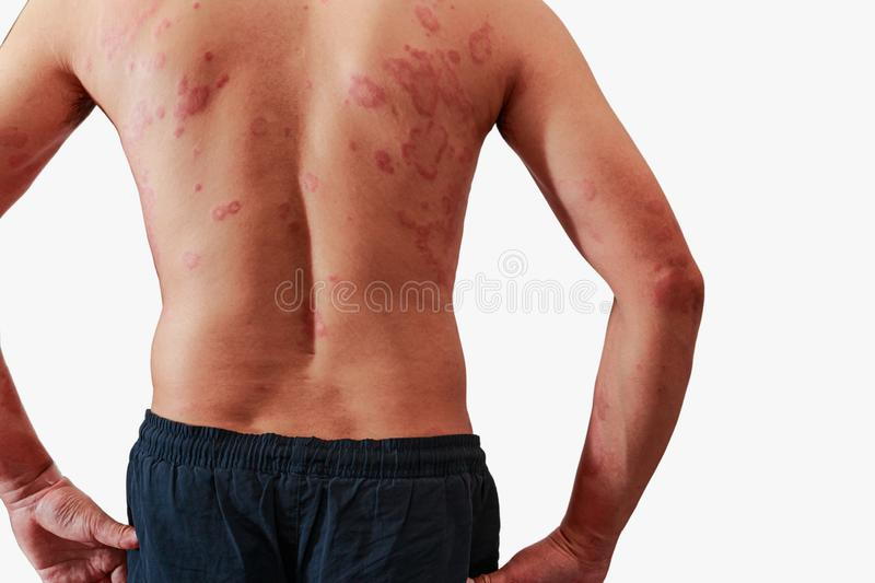 Around Back view of men with dermatitis problem of rash royalty free stock image