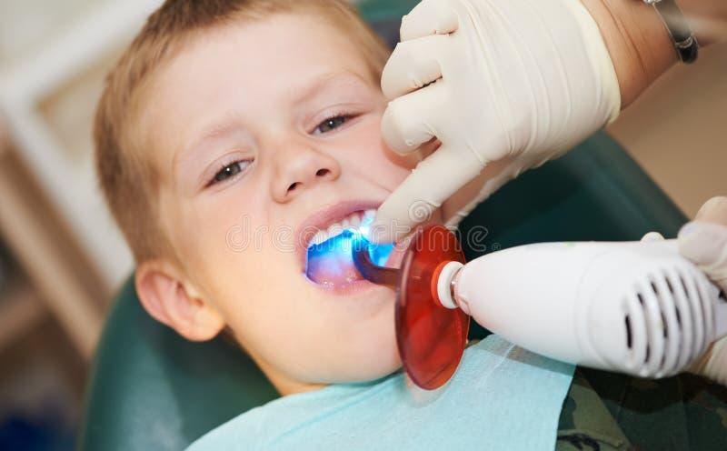 Arquivamento dental do dente da criança perto fotos de stock royalty free