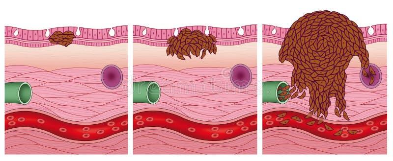 Arrangerar av en cancer stock illustrationer