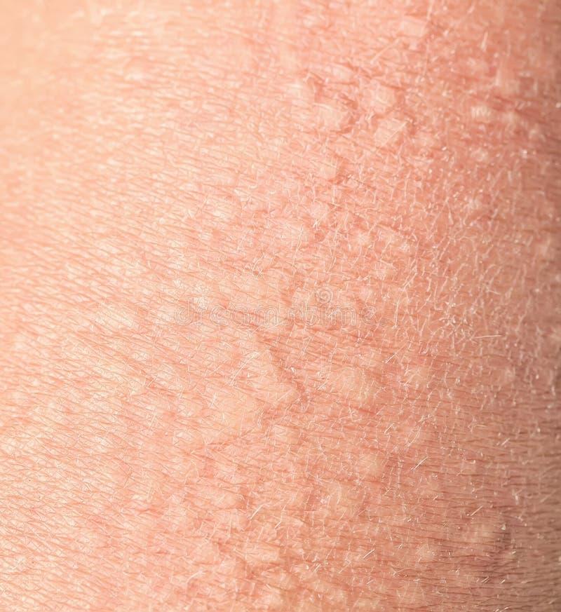 Arrière-plan de la texture peau irritée malsaine et irritée, recouverte de petites rides, de fissures et d'ampoules image stock