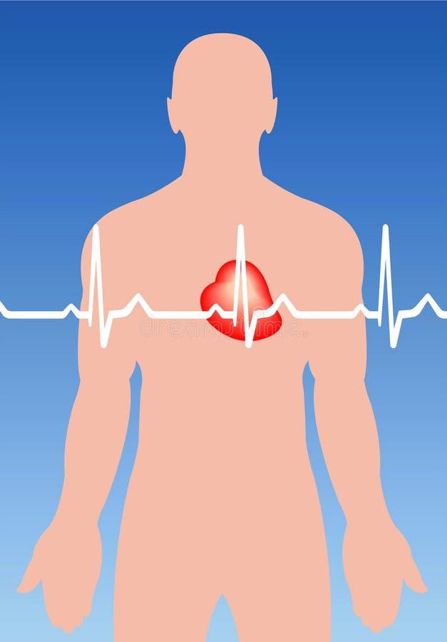 Arritmia cardiaca ilustración del vector