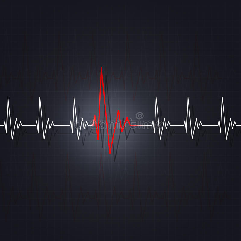 Arritmia de un corazón libre illustration