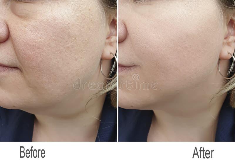 Arruga, piel, mejilla, cara foto de archivo