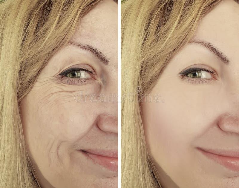 Arrugas antes y después de la terapia, tratamientos de envejecimiento de la mujer del biorevitalization del procedimiento imagen de archivo libre de regalías